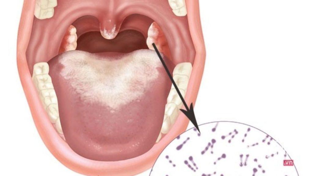 vi khuẩn bạch hầu và triệu chứng